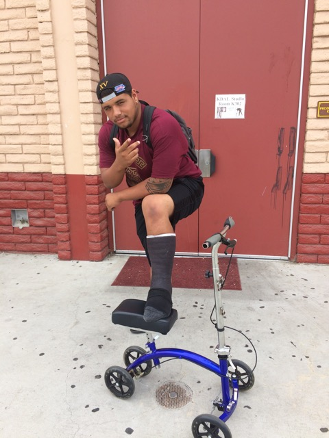 Chris Torres posing with his brand new cast and scooter for mobility around campus.